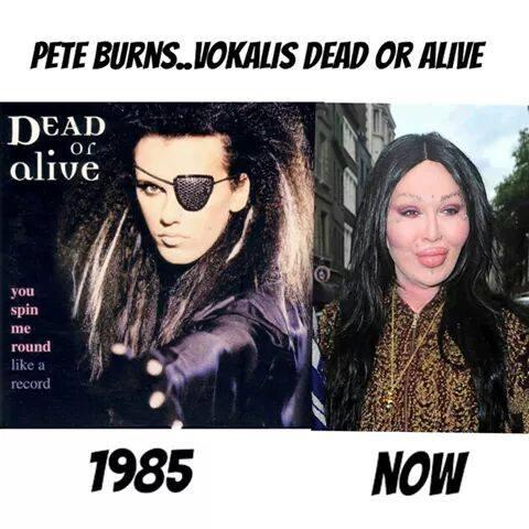 Perubahan Drastis Peter Burns