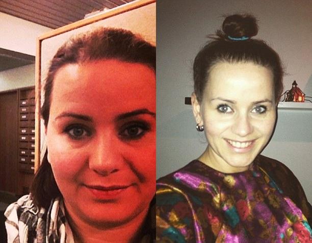 Perubahan Eva sebelum dan sesudah diet alami