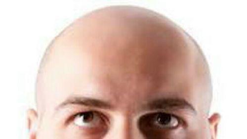Istri tuntut cerai suaminya karena sang suami botak